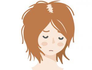 前髪 付け根 ハゲ 女性
